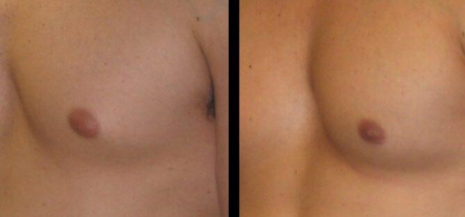 Gynecomastia Case 10 eft oblique