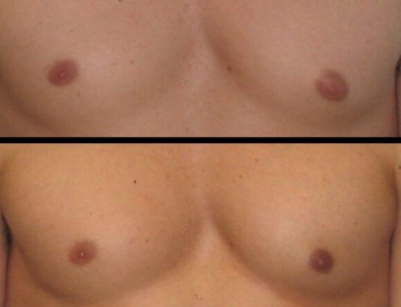 Gynecomastia Case 10 front