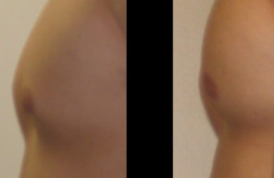 Gynecomastia Case 10 left side