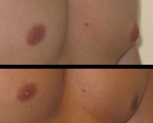Gynecomastia Case 10 right oblique