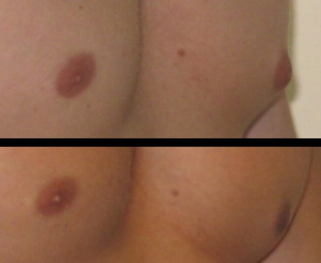 Gynecomastia Case 10 right oblique