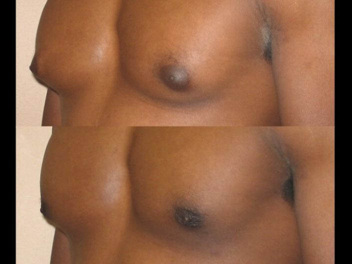 Gynecomastia Case 8 left oblique