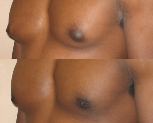 Gynecomastia Case 8 left oblique