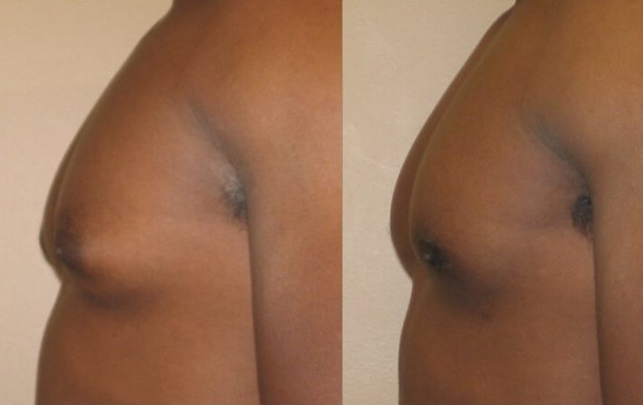 Gynecomastia Case 8 left side