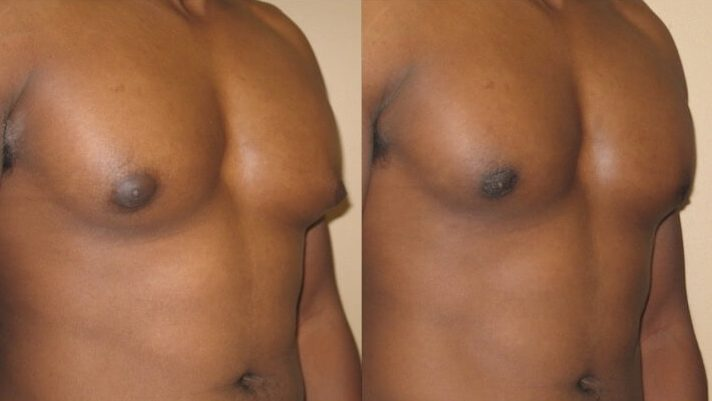 Gynecomastia Case 8 right oblique